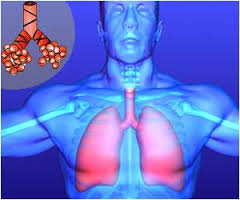 hypoventilation include cystic fibrosis